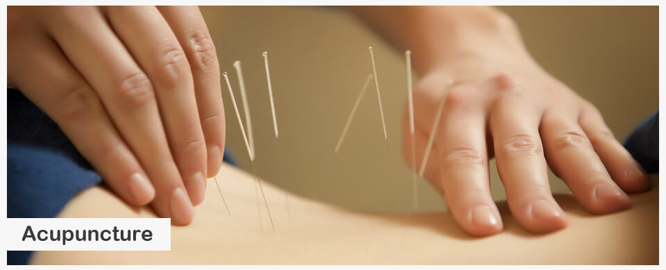 Acupuncture5